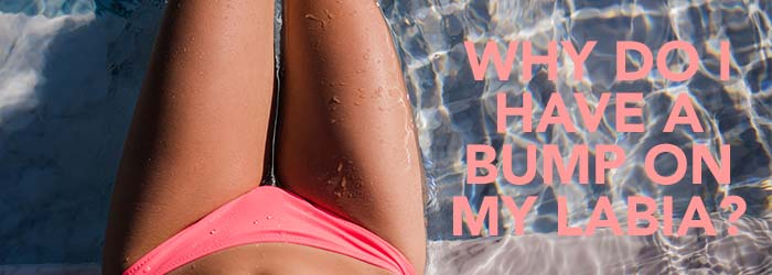 Why do I have a bump on my Labia?